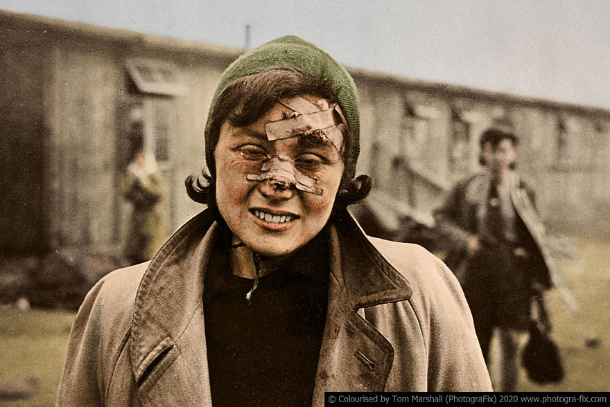 "One of the victims at Bergen-Belsen was this young woman, her face still bearing the scars of a terrible beating by the SS guards. The military ALWAYS censors the images of war to prevent the troops from getting ""soft"" towards the ""enemy""."